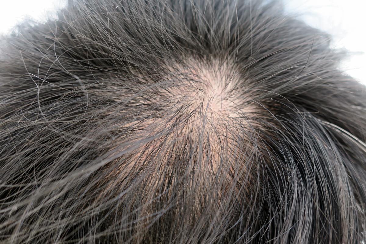 薬用育毛剤HG-101の効果を検証する