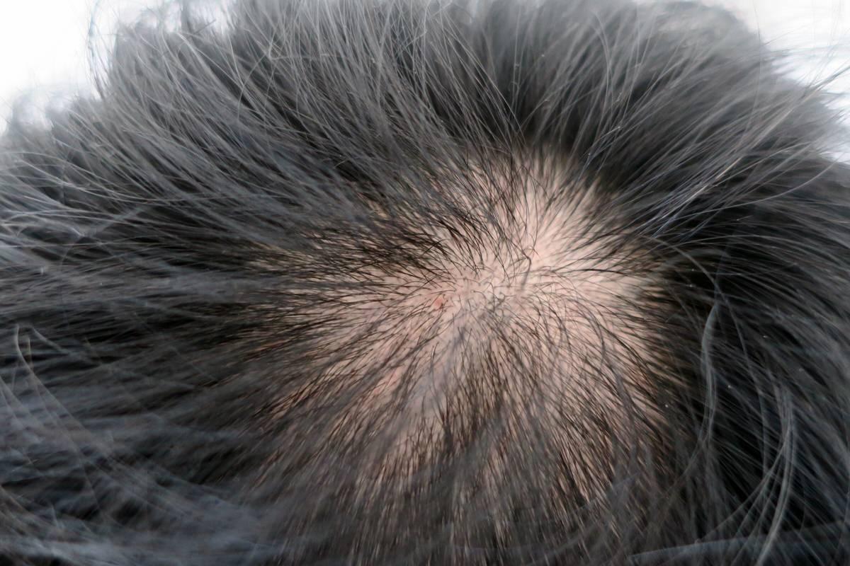 薄毛対策に薬用育毛剤HG-101を使ってみた